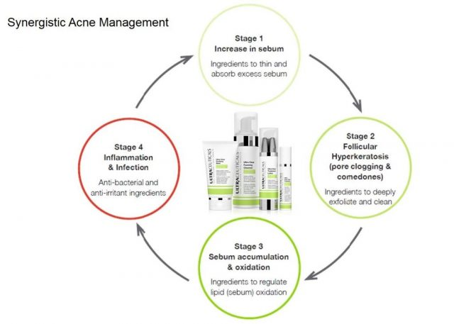 Synergistic Acne Management